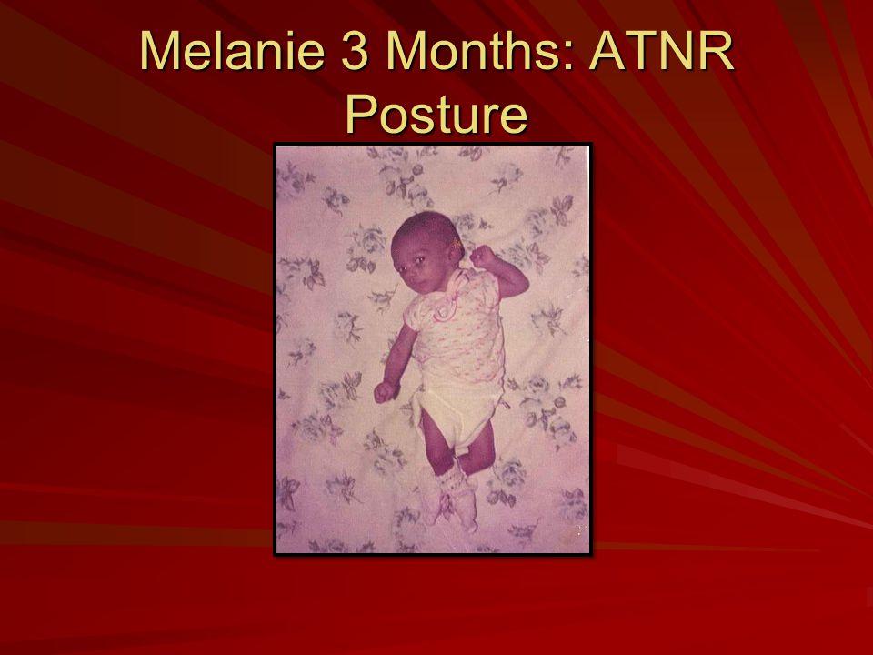 Melanie 3 Months: ATNR Posture