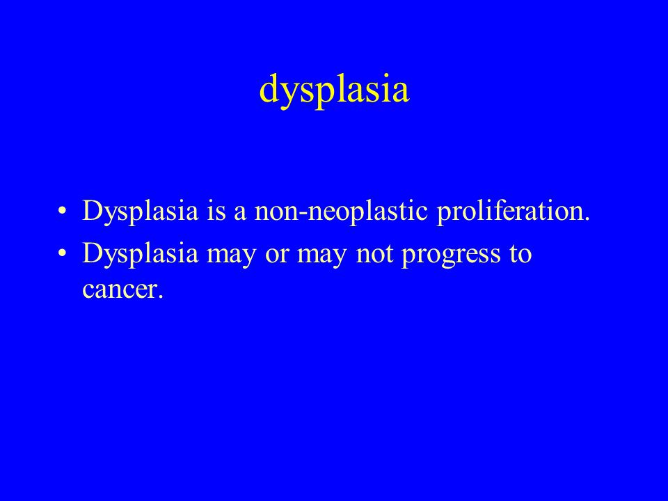 dysplasia Dysplasia is a non-neoplastic proliferation. Dysplasia may or may not progress to cancer.