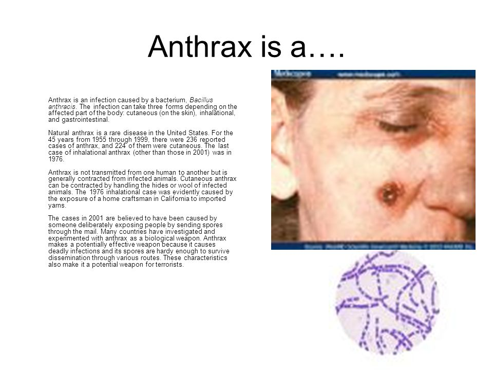 Anthrax is a…. Anthrax is an infection caused by a bacterium, Bacillus anthracis.