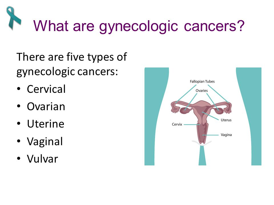 What are gynecologic cancers.