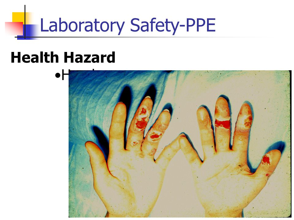 Laboratory Safety-PPE Health Hazard Hands