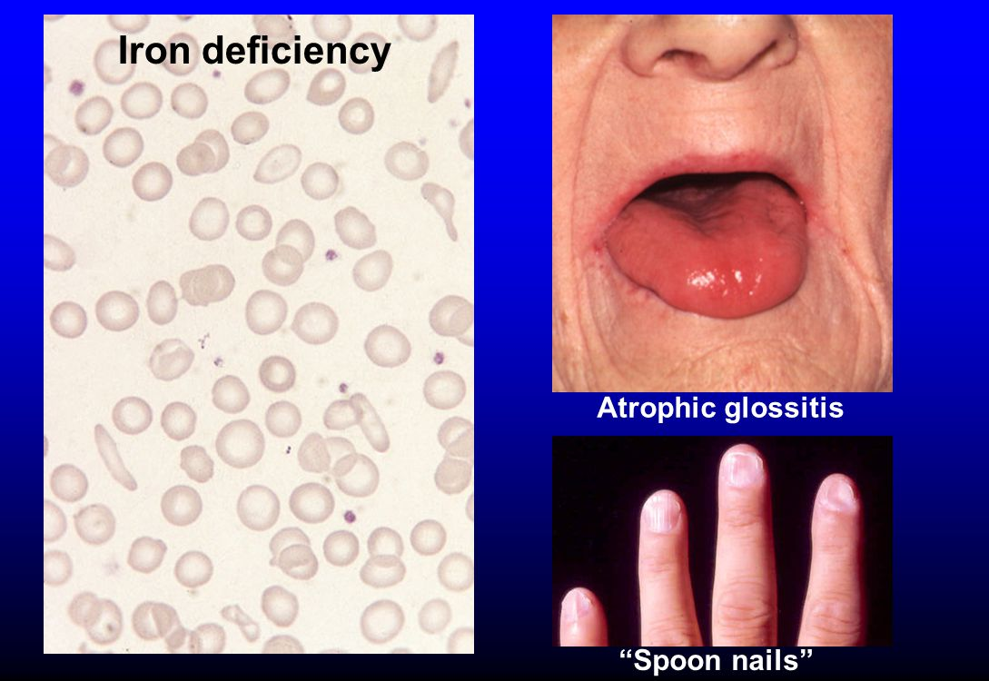 Atrophic glossitis Spoon nails Iron deficiency