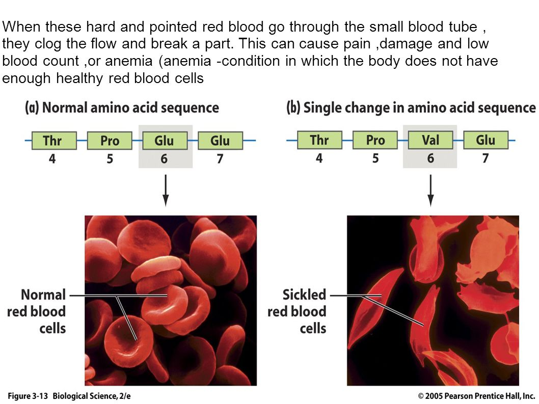 When these hard and pointed red blood go through the small blood tube, they clog the flow and break a part.