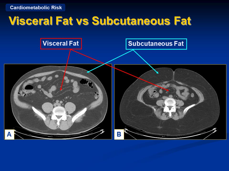 Visceral Fat vs Subcutaneous Fat A B Visceral Fat Subcutaneous Fat Courtesy: Steven Smith, MD Pennington Biomedical Research Center Cardiometabolic Risk