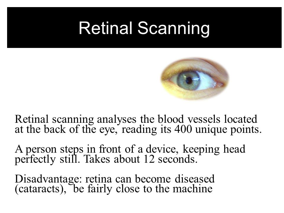 Retinal Scanning Retinal scanning analyses the blood vessels located at the back of the eye, reading its 400 unique points.