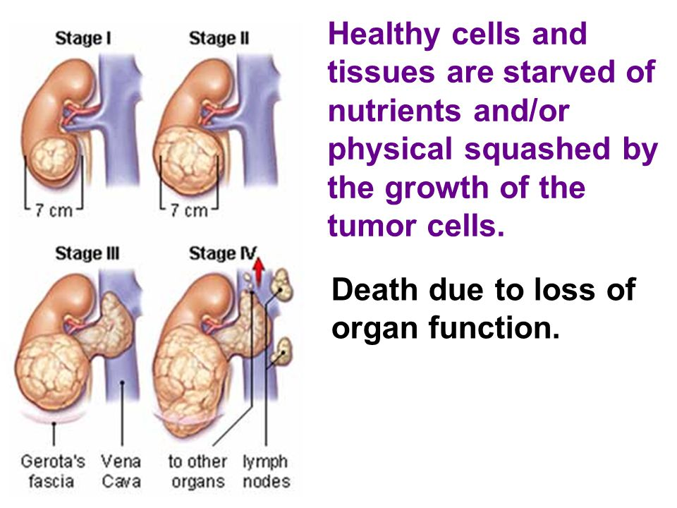 Healthy cells and tissues are starved of nutrients and/or physical squashed by the growth of the tumor cells.
