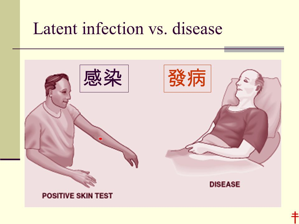 Latent infection vs. disease 感染發病