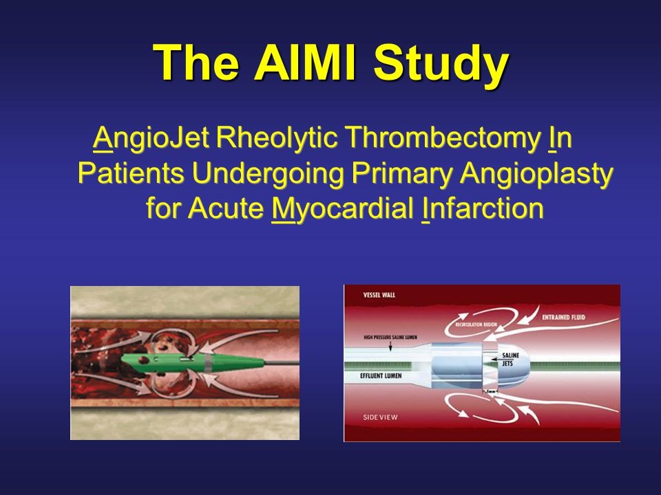 The AIMI Study AngioJet Rheolytic Thrombectomy In Patients Undergoing Primary Angioplasty for Acute Myocardial Infarction