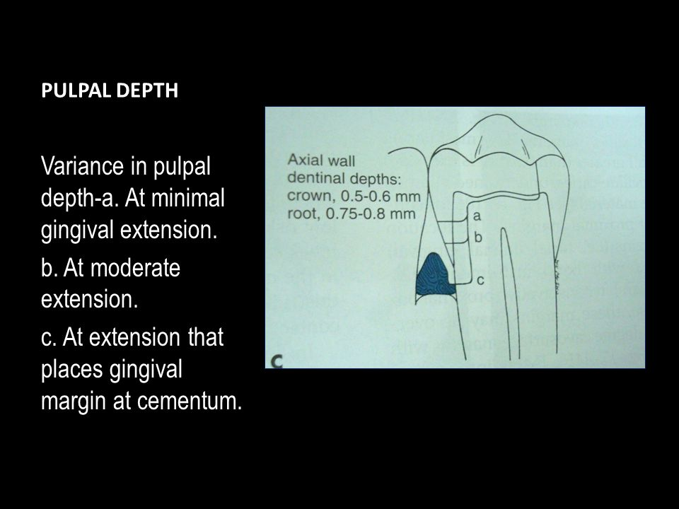 PULPAL DEPTH Variance in pulpal depth-a.At minimal gingival extension.
