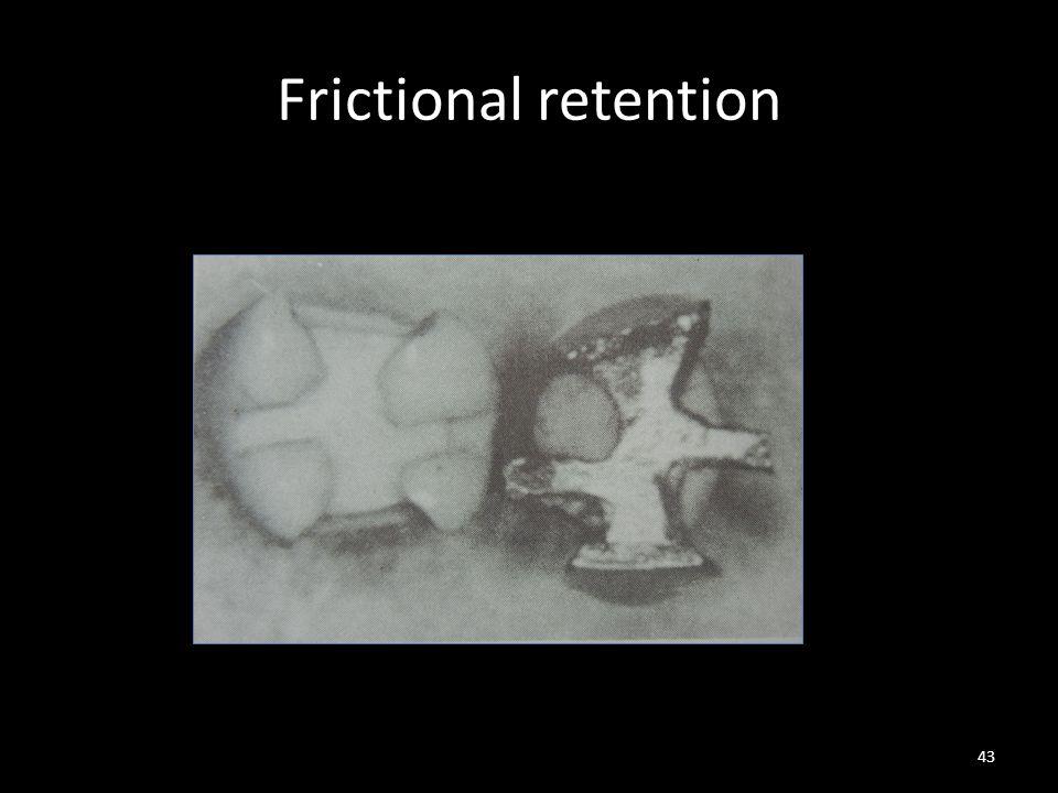 Frictional retention 43