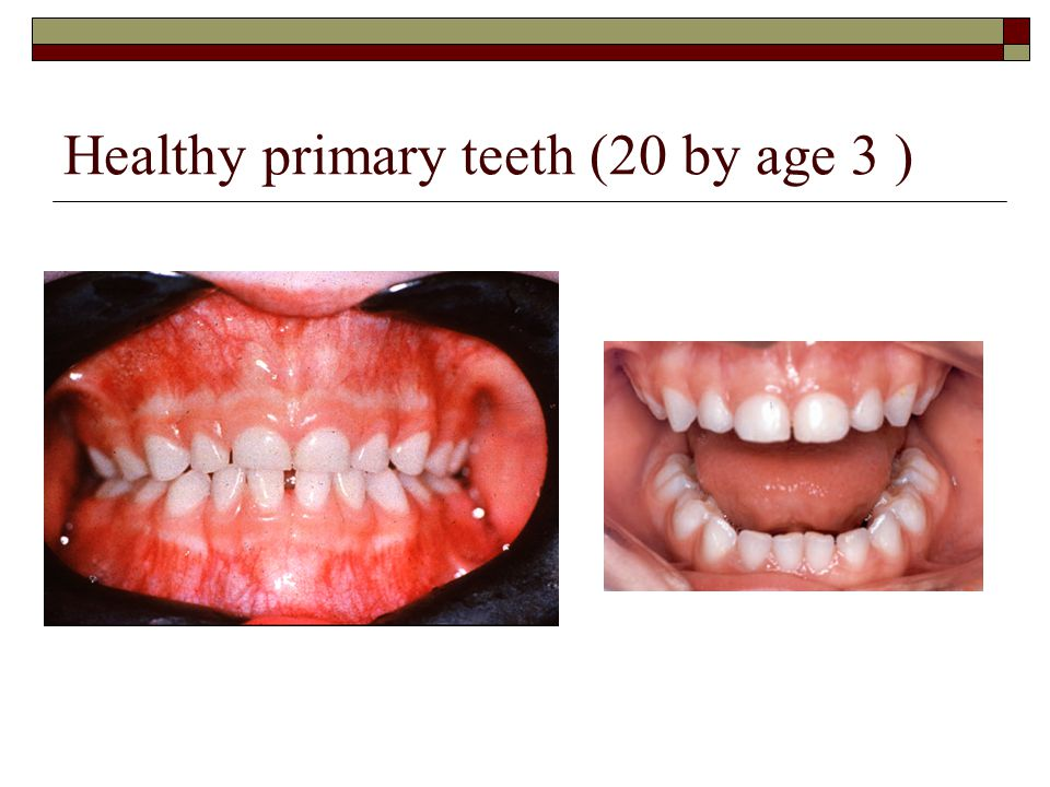 Healthy primary teeth (20 by age 3 )