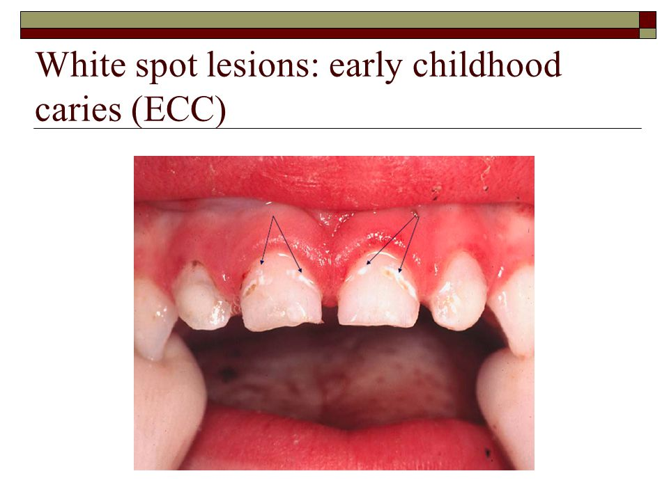 White spot lesions: early childhood caries (ECC)
