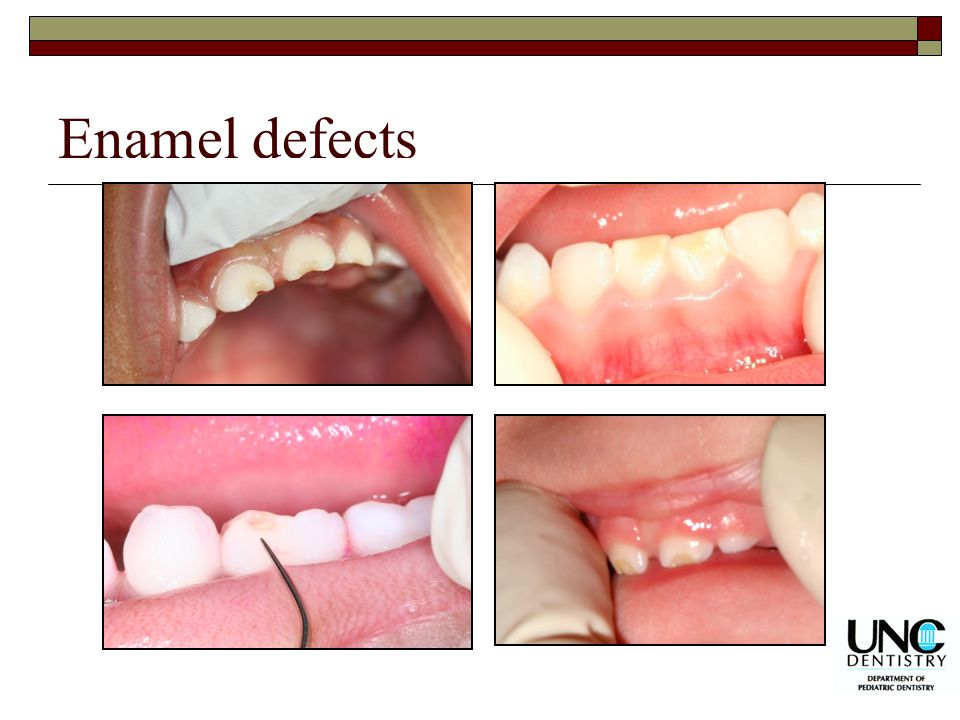 Enamel defects