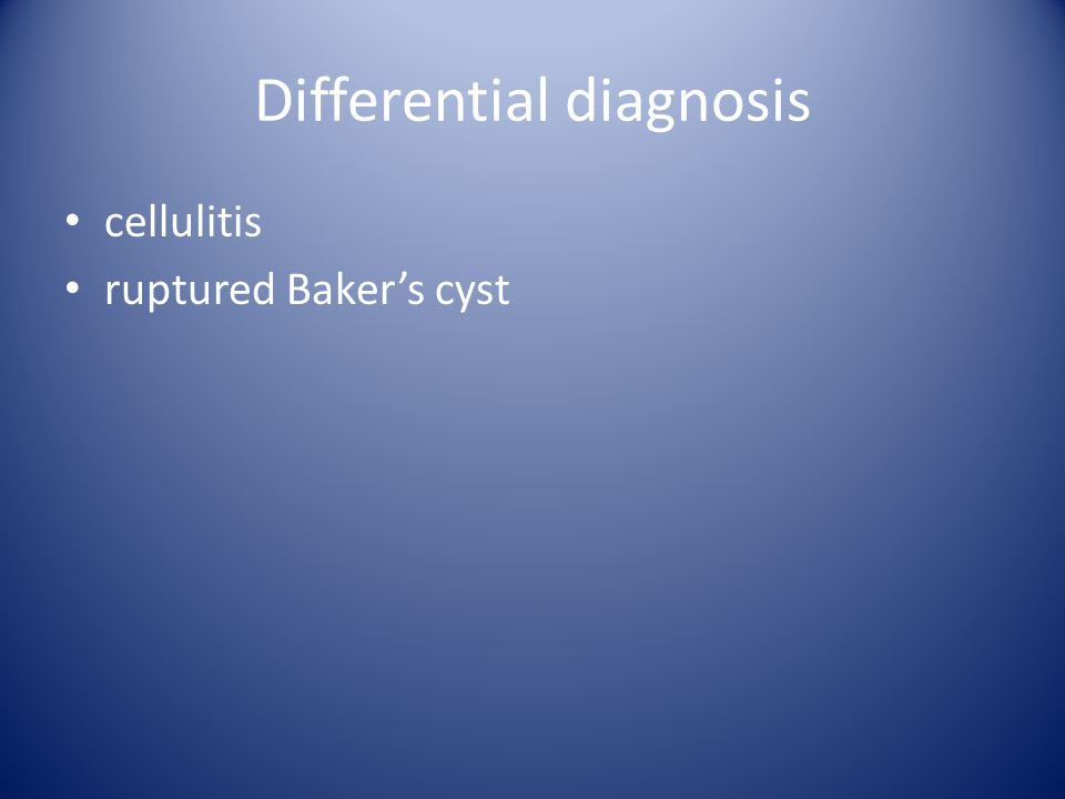 Differential diagnosis cellulitis ruptured Baker's cyst