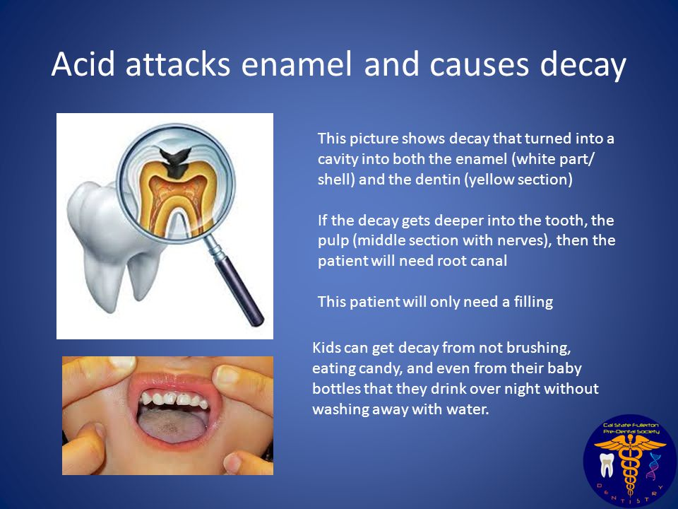 Acid attacks enamel and causes decay This picture shows decay that turned into a cavity into both the enamel (white part/ shell) and the dentin (yellow section) If the decay gets deeper into the tooth, the pulp (middle section with nerves), then the patient will need root canal This patient will only need a filling Kids can get decay from not brushing, eating candy, and even from their baby bottles that they drink over night without washing away with water.