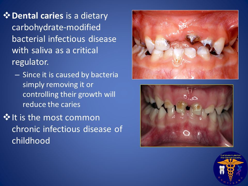  Dental caries is a dietary carbohydrate-modified bacterial infectious disease with saliva as a critical regulator.