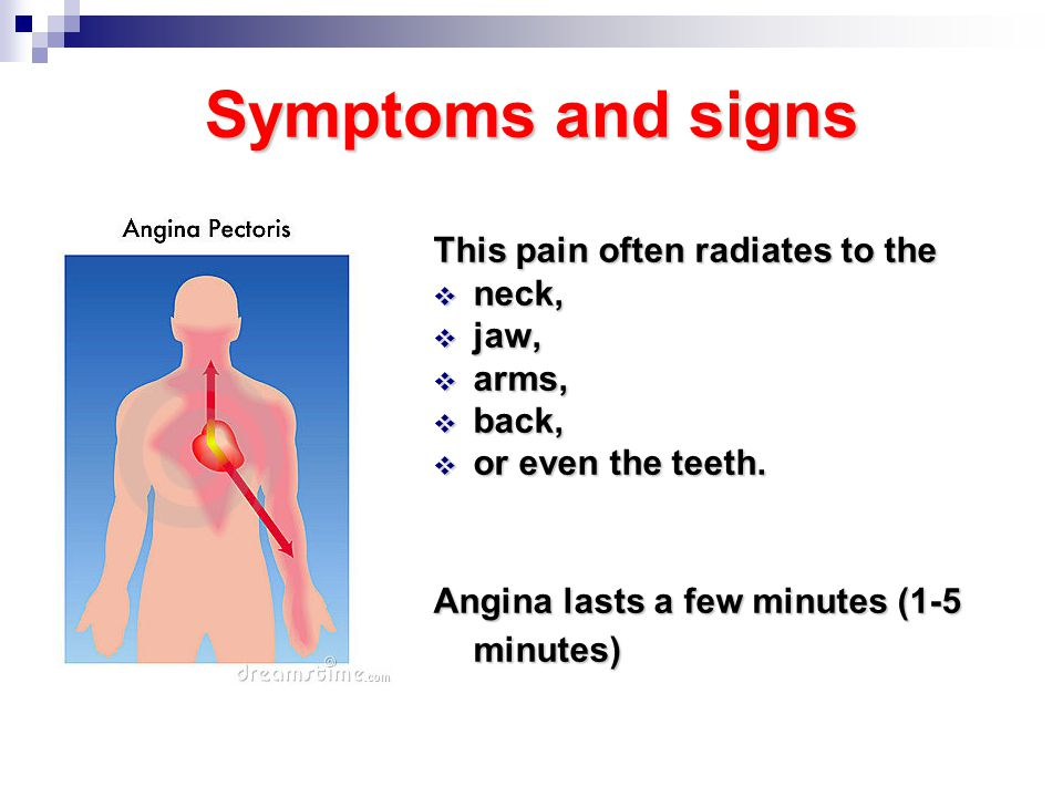 cause of angina pectoris Angina pectoris - the best drugs for heart diseases.