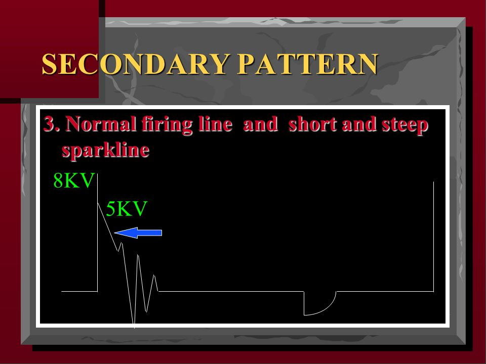 SECONDARY PATTERN 3. Normal firing line and short and steep sparkline 8KV 5KV