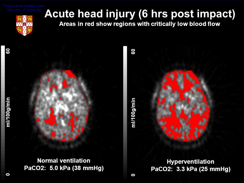 0ml/100g/min60 Acute head injury (6 hrs post impact) Areas in red show regions with critically low blood flow Hyperventilation PaCO2: 3.3 kPa (25 mmHg) Normal ventilation PaCO2: 5.0 kPa (38 mmHg) Wolfson Brain Imaging Centre University of Cambridge
