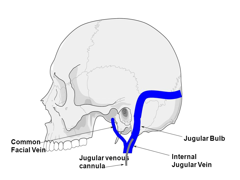 Jugular Bulb Common Facial Vein Jugular venous cannula Internal Jugular Vein