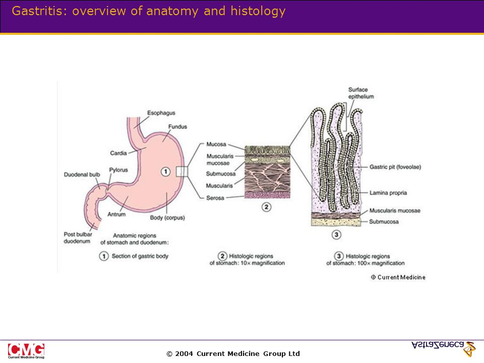 © 2004 Current Medicine Group Ltd Gastritis: overview of anatomy and histology