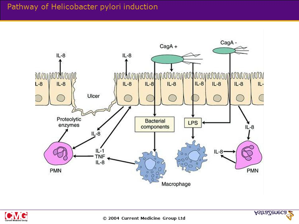 © 2004 Current Medicine Group Ltd Pathway of Helicobacter pylori induction