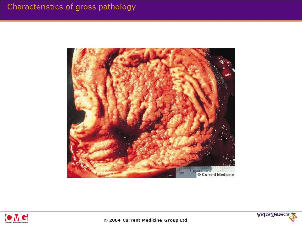 © 2004 Current Medicine Group Ltd Characteristics of gross pathology