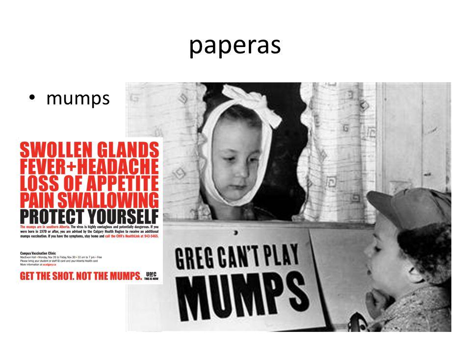 paperas mumps