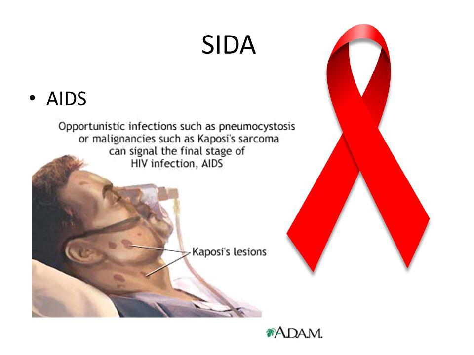 SIDA AIDS
