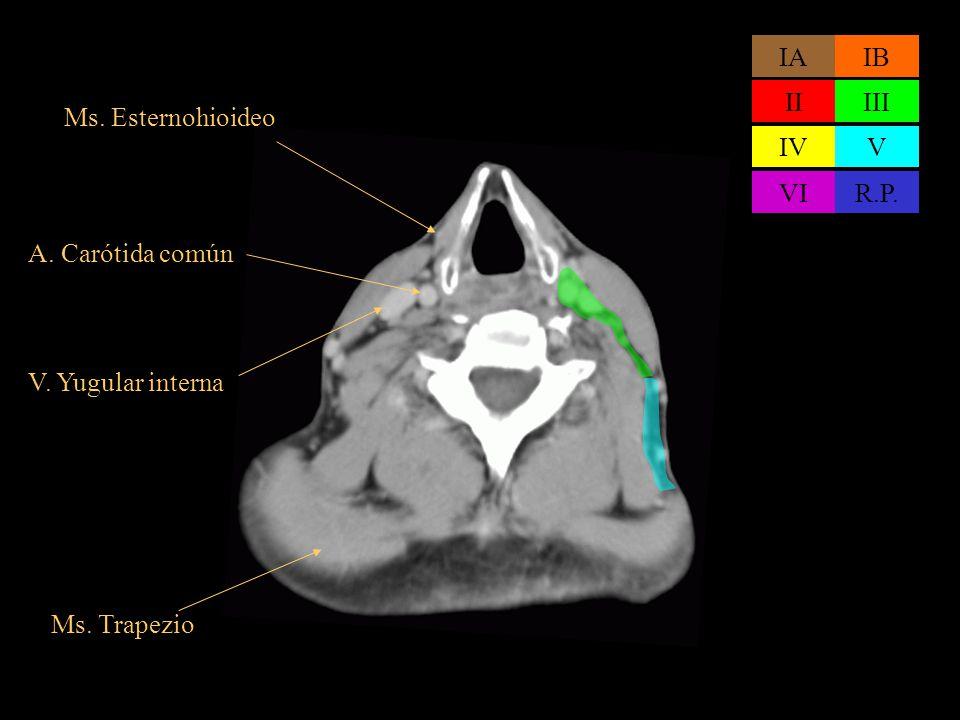 Ms. Esternohioideo V. Yugular interna A. Carótida común IAIB IIIII IVV VIR.P. Ms. Trapezio