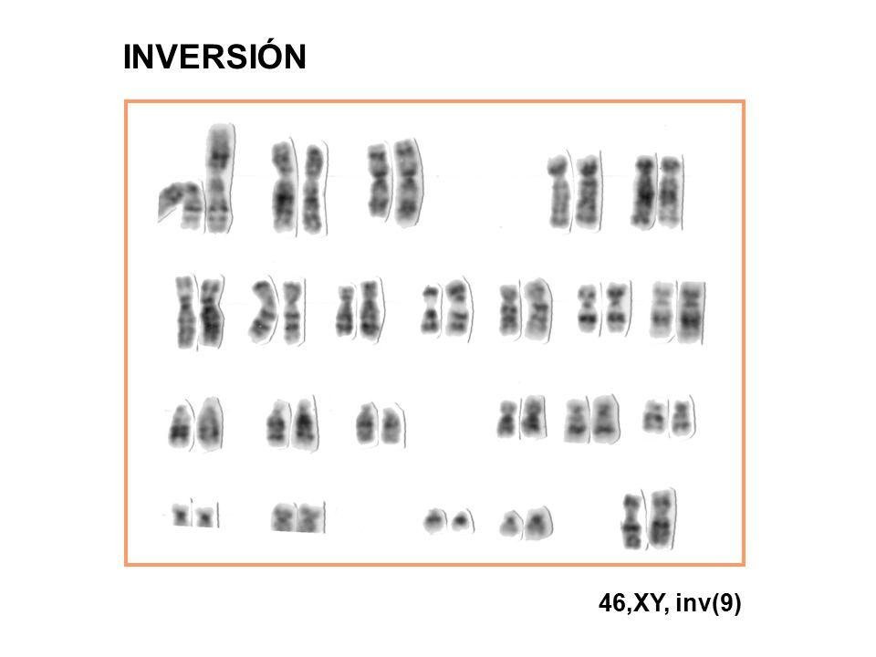 46,XY, inv(9) INVERSIÓN