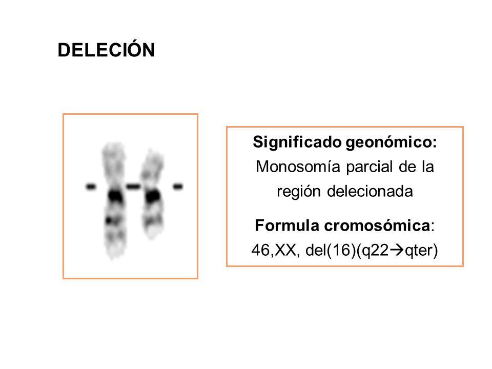 Significado geonómico: Monosomía parcial de la región delecionada Formula cromosómica: 46,XX, del(16)(q22  qter) DELECIÓN