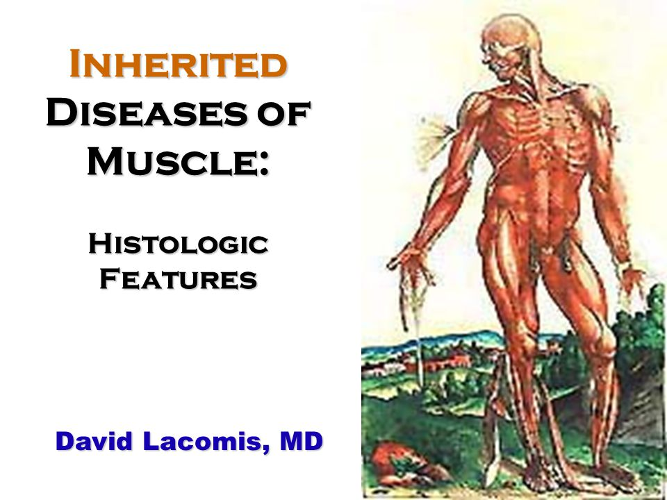Inherited Diseases of Muscle: Histologic Features David Lacomis, MD