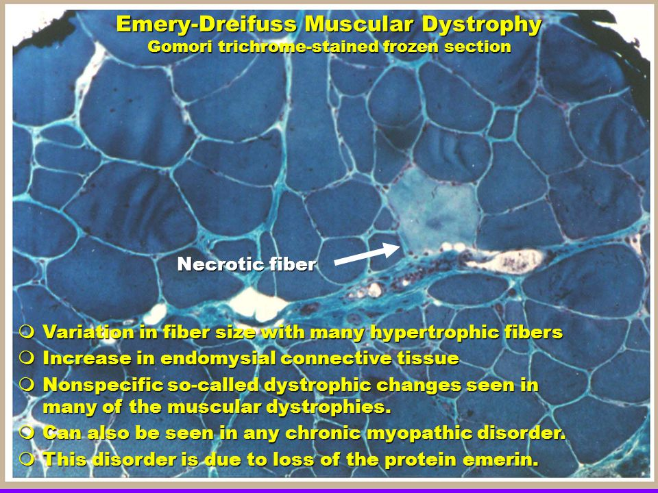 Emery-Dreifuss Muscular Dystrophy Gomori trichrome-stained frozen section Necrotic fiber  Variation in fiber size with many hypertrophic fibers  Increase in endomysial connective tissue  Nonspecific so-called dystrophic changes seen in many of the muscular dystrophies.