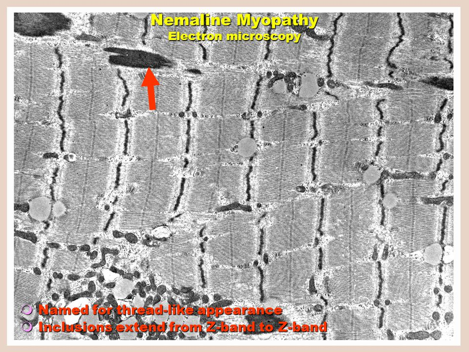  Named for thread-like appearance  Inclusions extend from Z-band to Z-band Nemaline Myopathy Electron microscopy