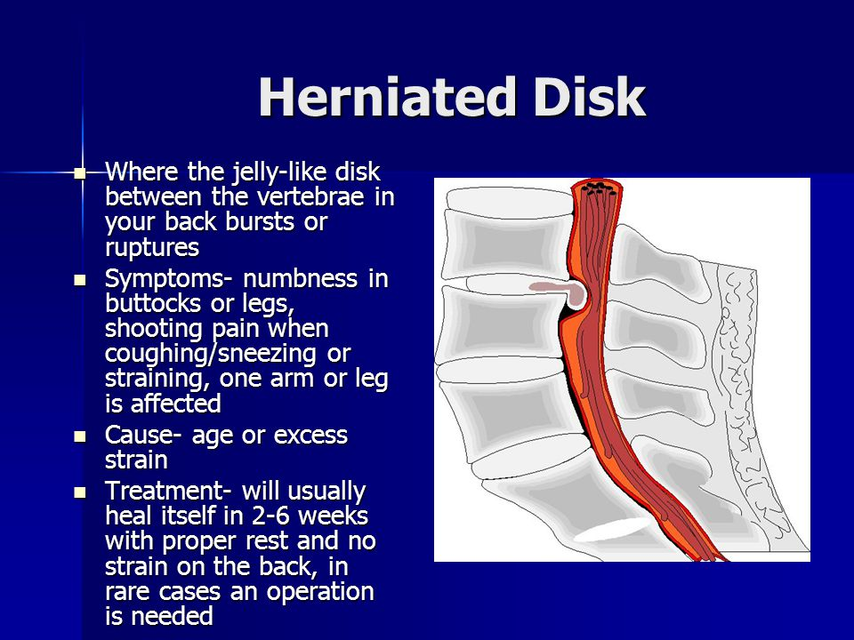 Herniated Disk Where the jelly-like disk between the vertebrae in your back bursts or ruptures Where the jelly-like disk between the vertebrae in your back bursts or ruptures Symptoms- numbness in buttocks or legs, shooting pain when coughing/sneezing or straining, one arm or leg is affected Symptoms- numbness in buttocks or legs, shooting pain when coughing/sneezing or straining, one arm or leg is affected Cause- age or excess strain Cause- age or excess strain Treatment- will usually heal itself in 2-6 weeks with proper rest and no strain on the back, in rare cases an operation is needed Treatment- will usually heal itself in 2-6 weeks with proper rest and no strain on the back, in rare cases an operation is needed