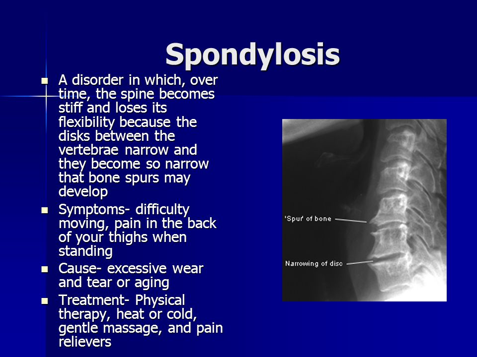 Spondylosis A disorder in which, over time, the spine becomes stiff and loses its flexibility because the disks between the vertebrae narrow and they become so narrow that bone spurs may develop A disorder in which, over time, the spine becomes stiff and loses its flexibility because the disks between the vertebrae narrow and they become so narrow that bone spurs may develop Symptoms- difficulty moving, pain in the back of your thighs when standing Symptoms- difficulty moving, pain in the back of your thighs when standing Cause- excessive wear and tear or aging Cause- excessive wear and tear or aging Treatment- Physical therapy, heat or cold, gentle massage, and pain relievers Treatment- Physical therapy, heat or cold, gentle massage, and pain relievers