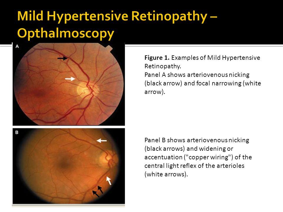 Mild Hypertensive Retinopathy u2013 Opthalmoscopy Figure 1.  sc 1 st  SlidePlayer : hypertensive retinopathy silver wiring - yogabreezes.com