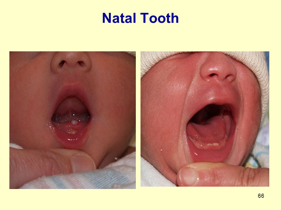 66 Natal Tooth