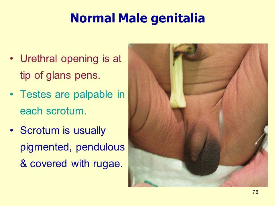 78 Normal Male genitalia Urethral opening is at tip of glans pens.