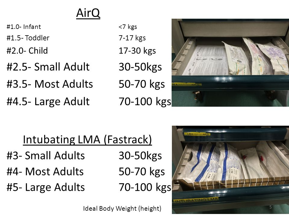 Intubating LMA (Fastrack) #3- Small Adults 30-50kgs #4- Most Adults50-70 kgs #5- Large Adults kgs AirQ #1.0- Infant <7 kgs #1.5- Toddler 7-17 kgs #2.0- Child kgs #2.5- Small Adult30-50kgs #3.5- Most Adults50-70 kgs #4.5- Large Adult kgs Ideal Body Weight (height) 5