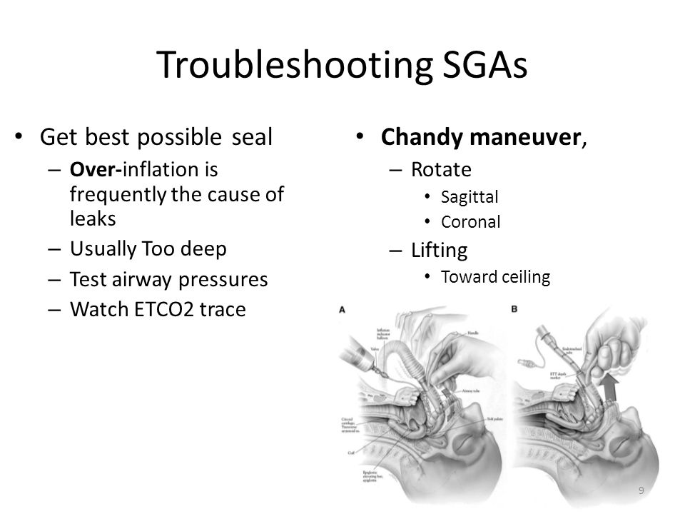 Troubleshooting SGAs Get best possible seal – Over-inflation is frequently the cause of leaks – Usually Too deep – Test airway pressures – Watch ETCO2 trace Chandy maneuver, – Rotate Sagittal Coronal – Lifting Toward ceiling 9