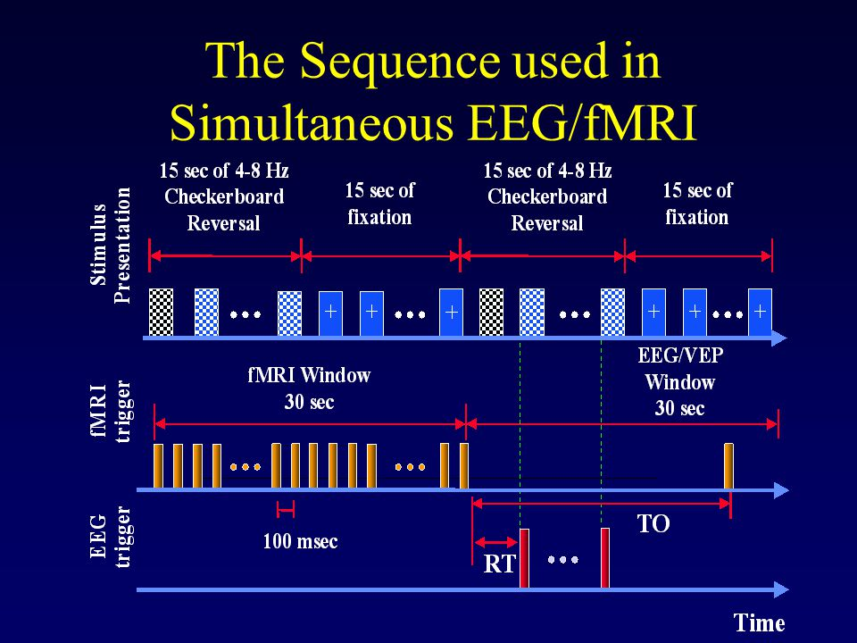 The Sequence used in Simultaneous EEG/fMRI
