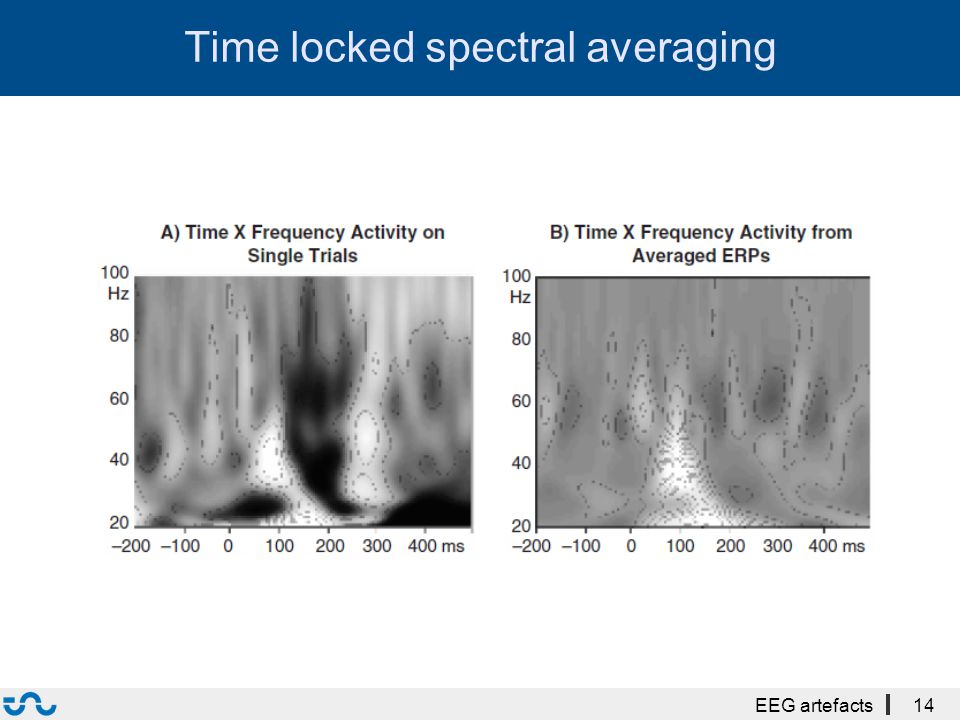 Time locked spectral averaging EEG artefacts14