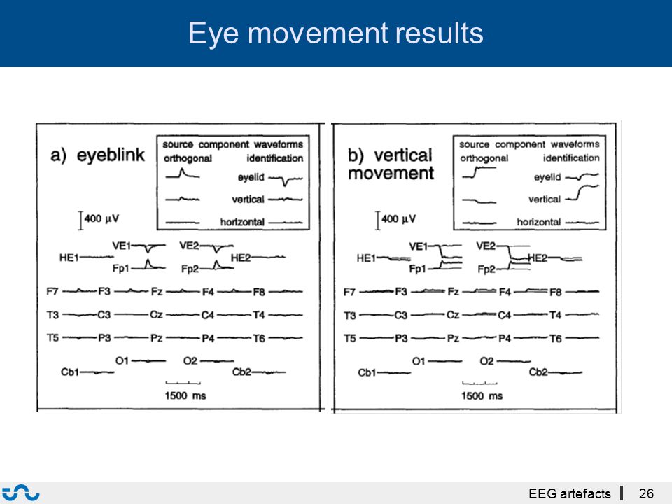 Eye movement results EEG artefacts26