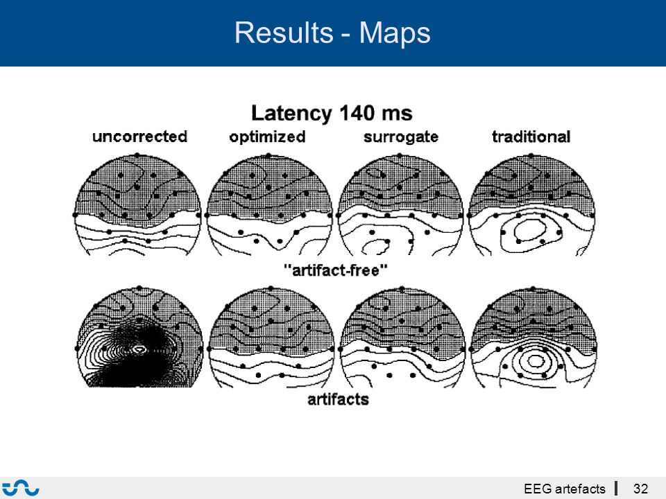 Results - Maps EEG artefacts32