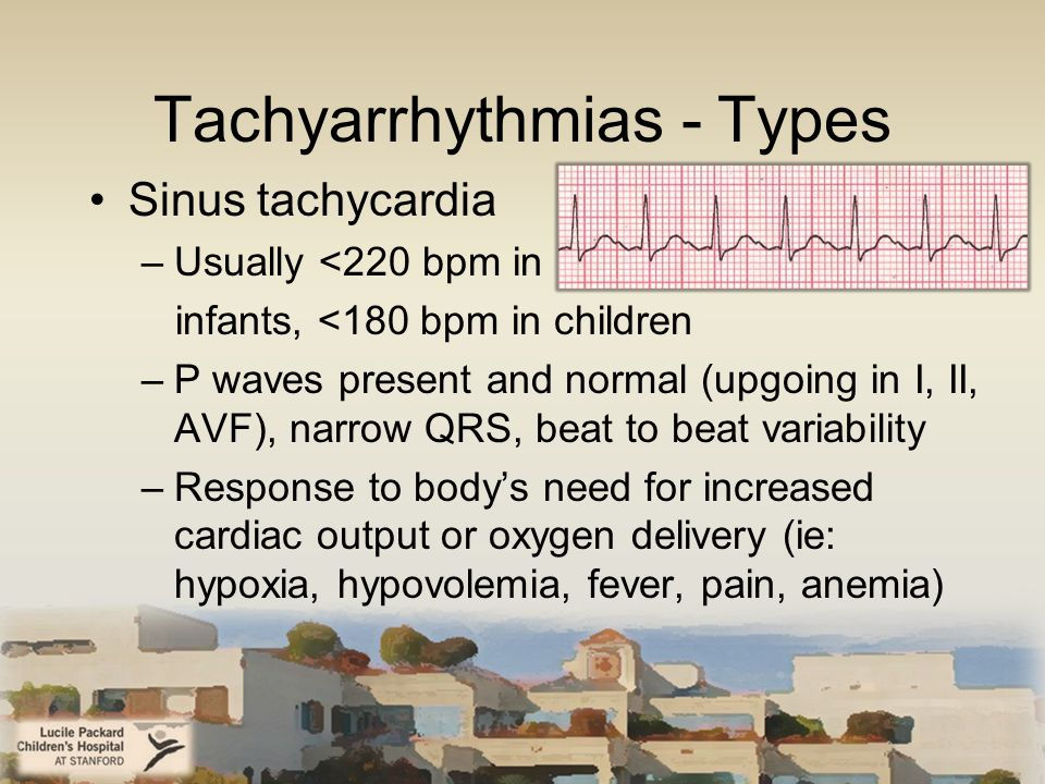 Tachyarrhythmias - Types Sinus tachycardia –Usually <220 bpm in infants, <180 bpm in children –P waves present and normal (upgoing in I, II, AVF), narrow QRS, beat to beat variability –Response to body's need for increased cardiac output or oxygen delivery (ie: hypoxia, hypovolemia, fever, pain, anemia)