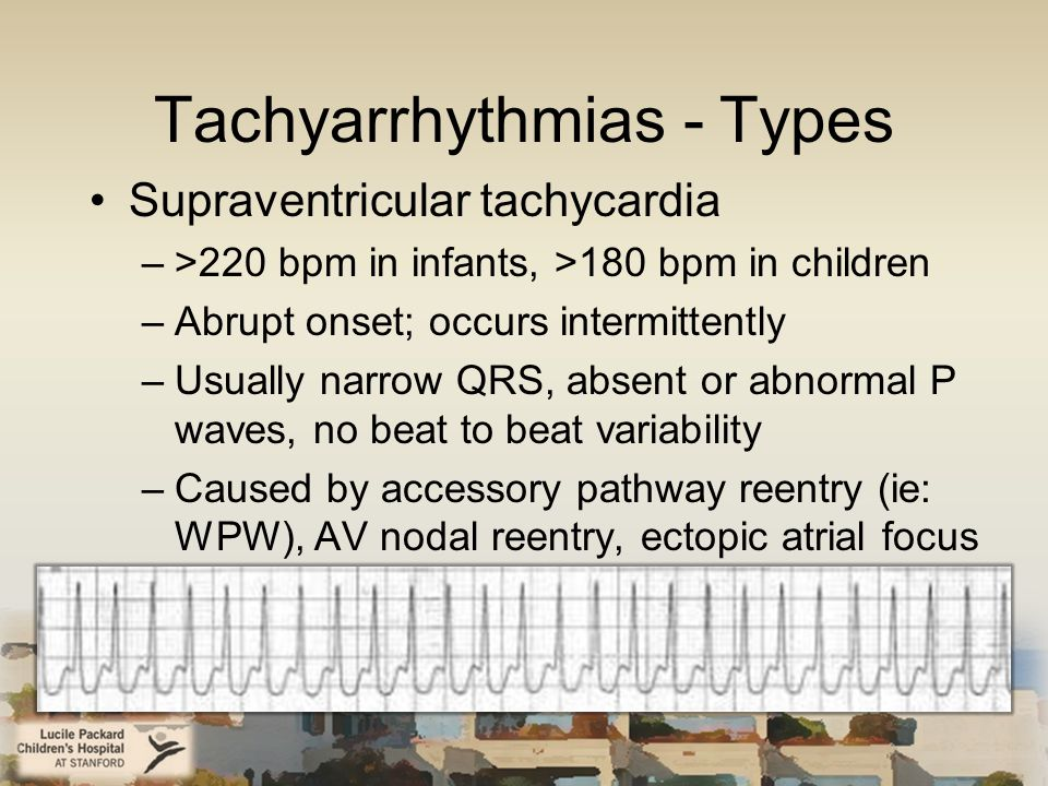 Tachyarrhythmias - Types Supraventricular tachycardia –>220 bpm in infants, >180 bpm in children –Abrupt onset; occurs intermittently –Usually narrow QRS, absent or abnormal P waves, no beat to beat variability –Caused by accessory pathway reentry (ie: WPW), AV nodal reentry, ectopic atrial focus