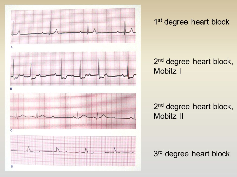 1 st degree heart block 2 nd degree heart block, Mobitz I 2 nd degree heart block, Mobitz II 3 rd degree heart block