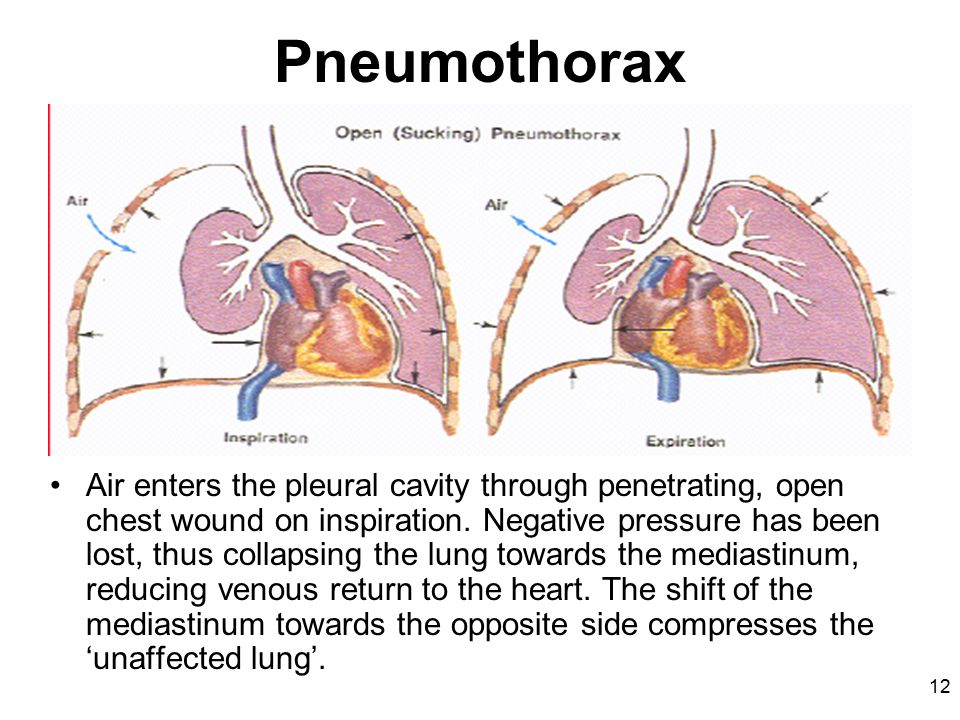 12 Pneumothorax Air enters the pleural cavity through penetrating, open chest wound on inspiration.